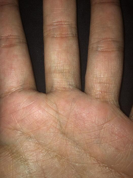 私の左手のBL線