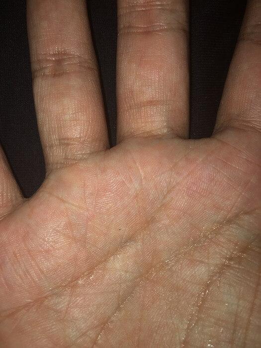 私の右手のBL線
