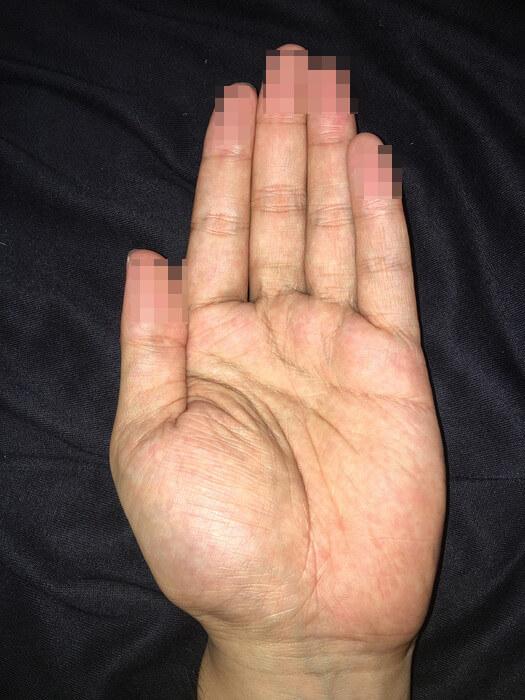 私の左手のひら(線強調)