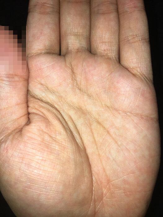 私の左手のひら(線強調+アップ)