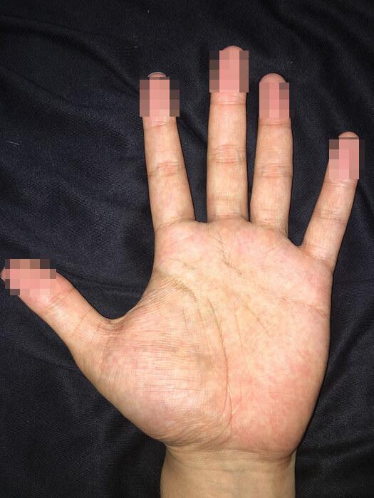 私の左手のひら(自然)