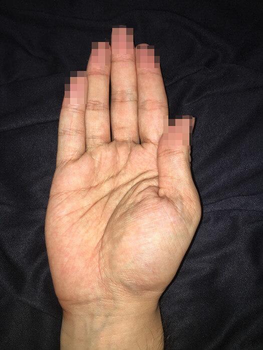 私の右手のひら(線強調)