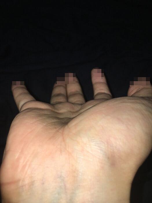 私の右手の丘