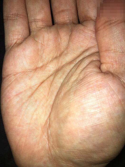 私の右手のひら(線強調+アップ)