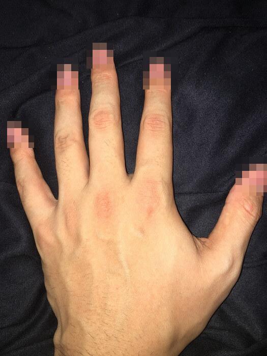 私の左手の甲